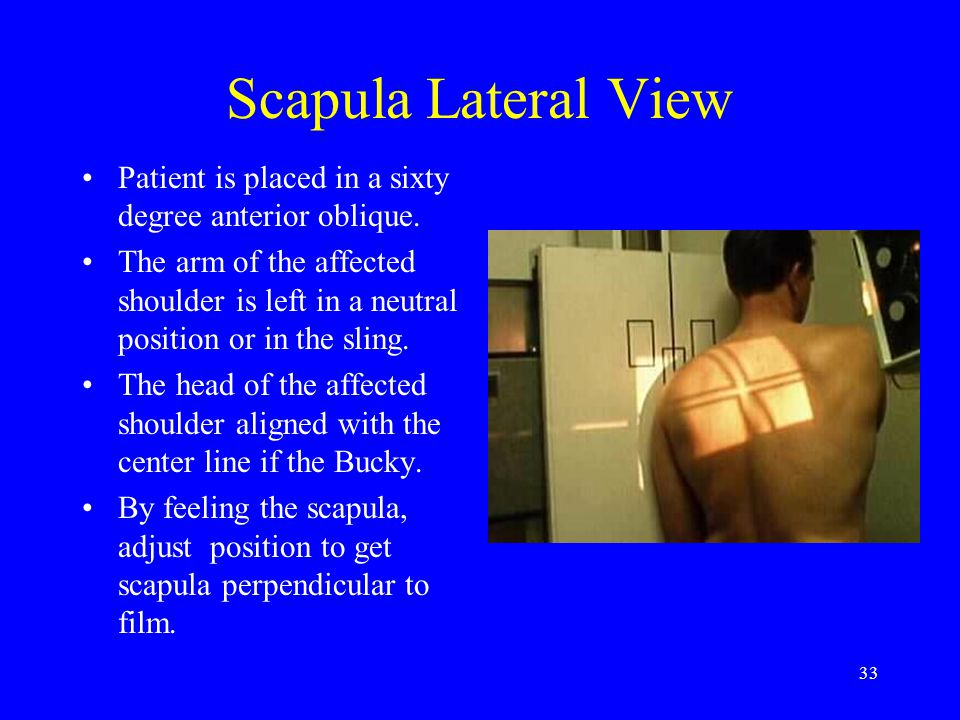 Scapula Lateral View Patient is placed in a sixty degree anterior oblique.