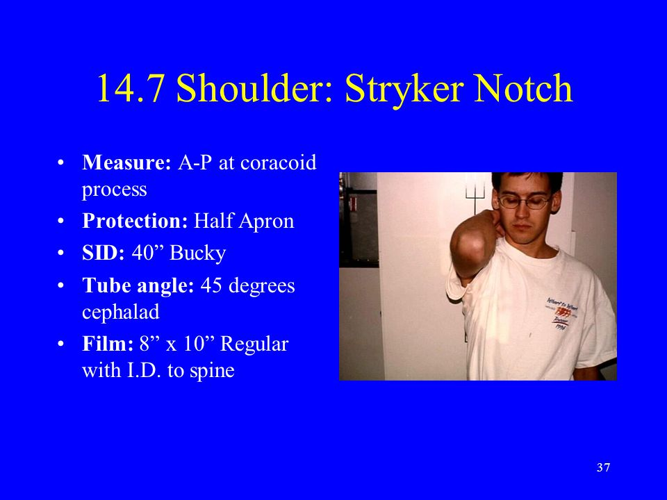 14.7 Shoulder: Stryker Notch