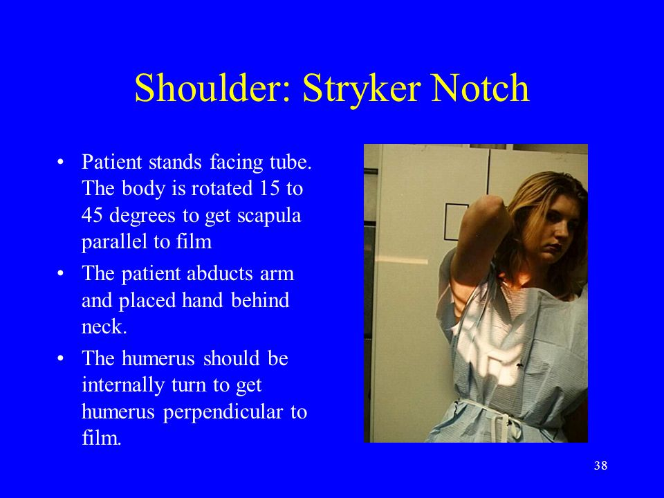 Shoulder: Stryker Notch