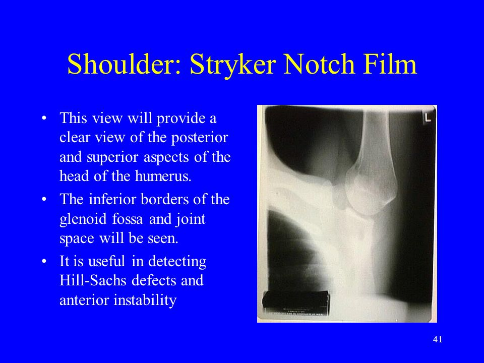 Shoulder: Stryker Notch Film