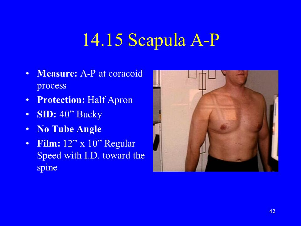 14.15 Scapula A-P Measure: A-P at coracoid process
