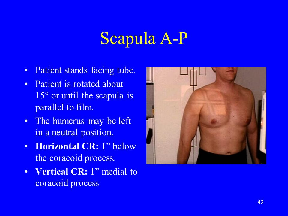 Scapula A-P Patient stands facing tube.