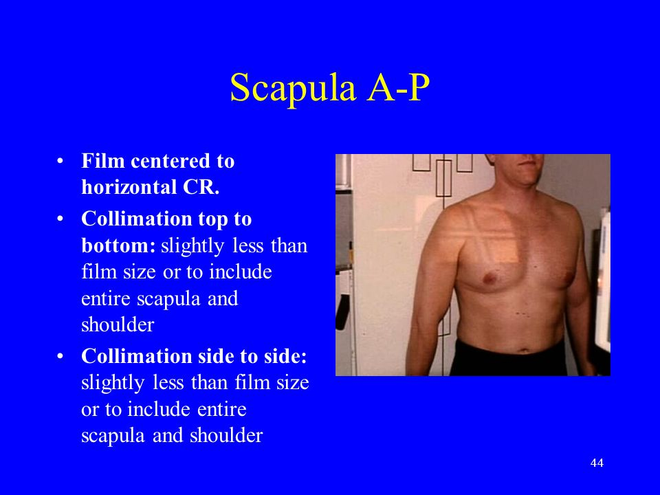 Scapula A-P Film centered to horizontal CR.