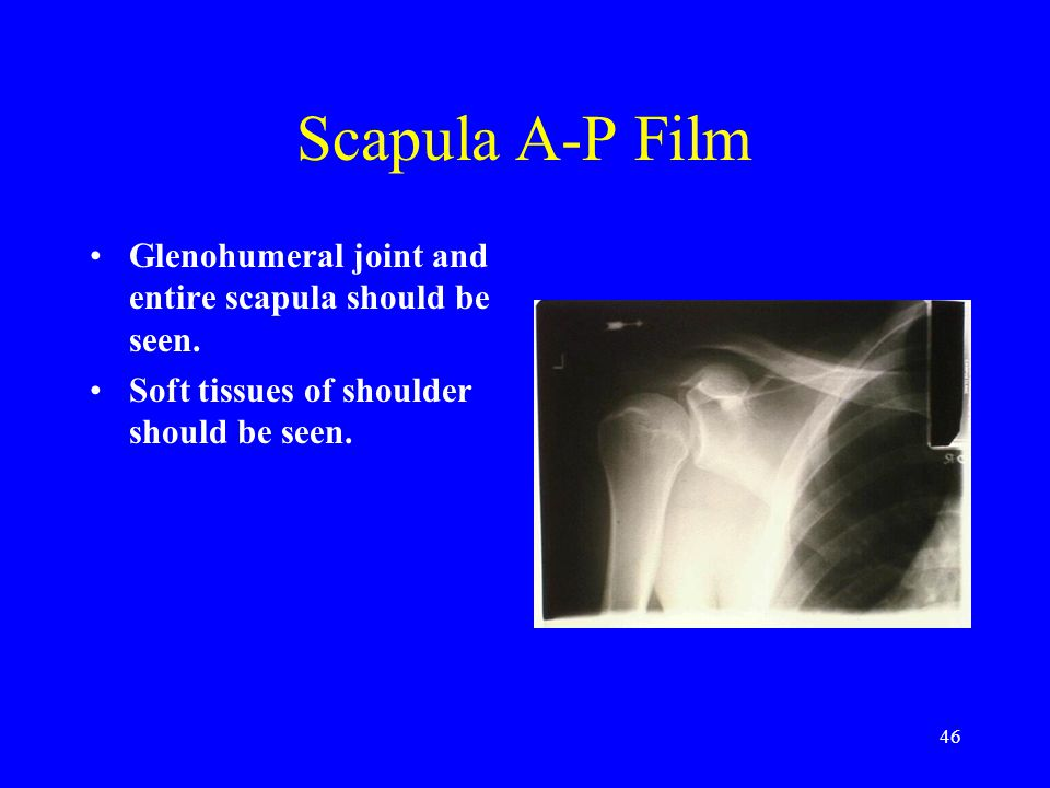 Scapula A-P Film Glenohumeral joint and entire scapula should be seen.