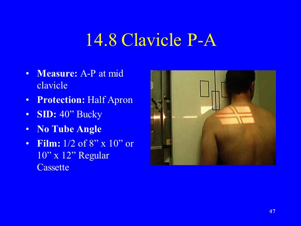14.8 Clavicle P-A Measure: A-P at mid clavicle Protection: Half Apron