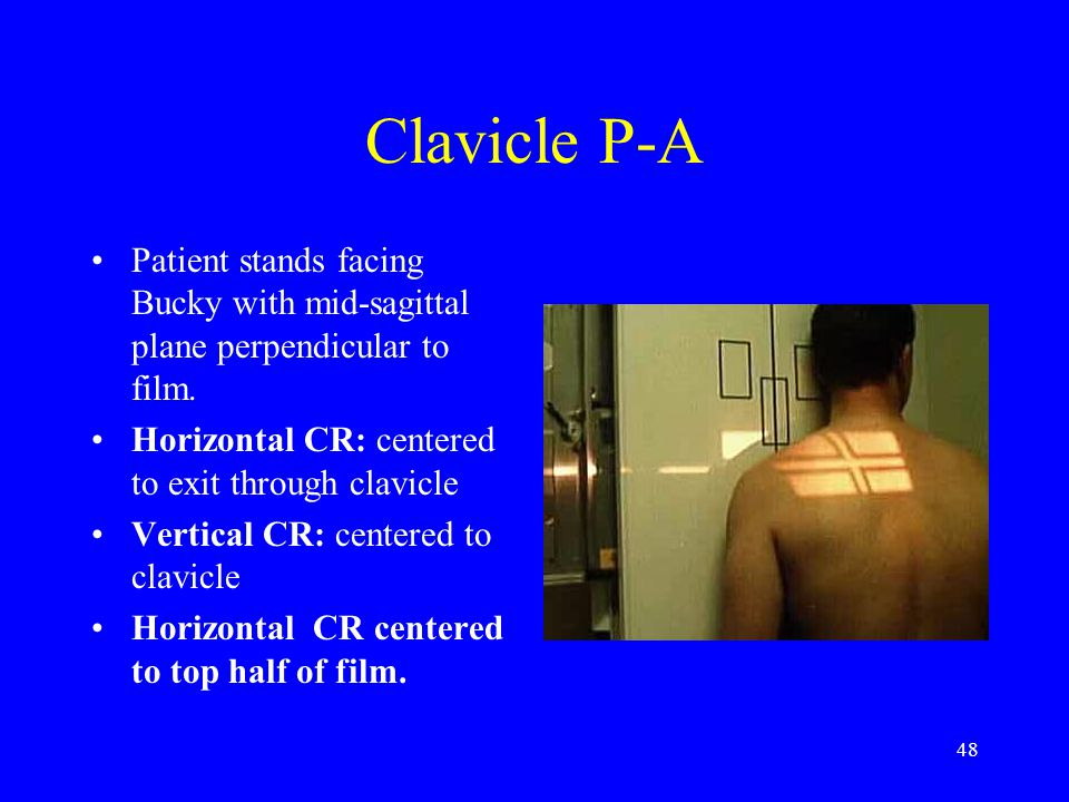 Clavicle P-A Patient stands facing Bucky with mid-sagittal plane perpendicular to film. Horizontal CR: centered to exit through clavicle.