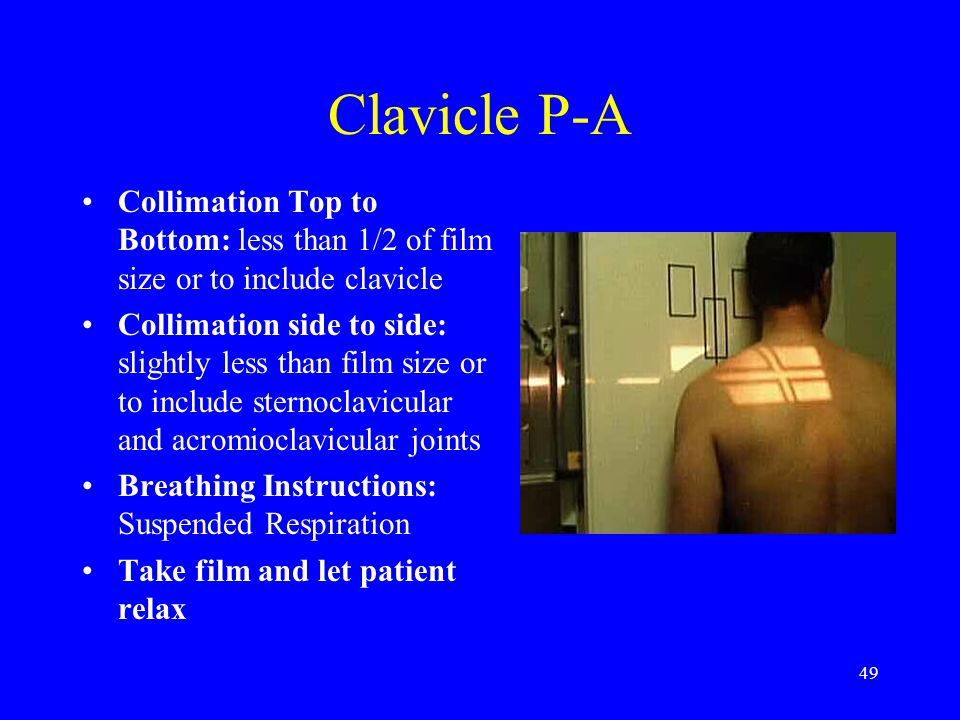 Clavicle P-A Collimation Top to Bottom: less than 1/2 of film size or to include clavicle.