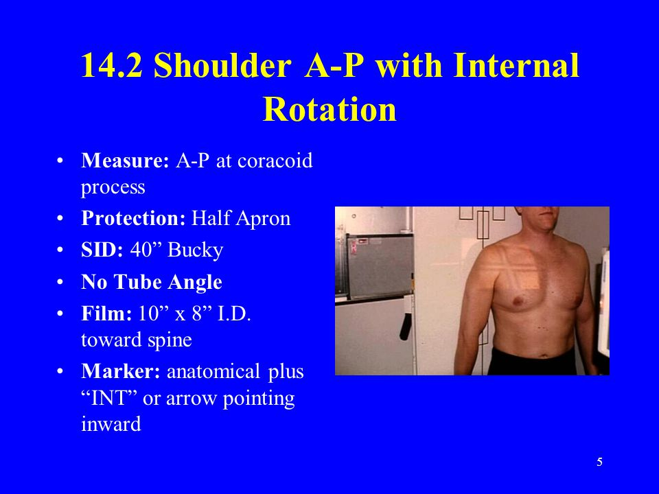 14.2 Shoulder A-P with Internal Rotation