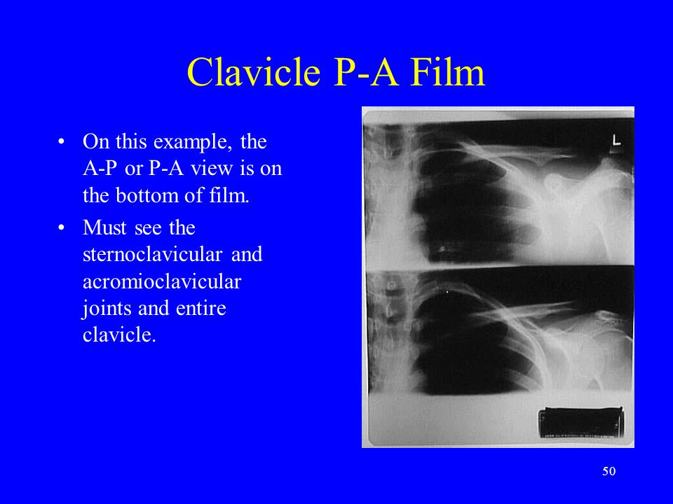 Clavicle P-A Film On this example, the A-P or P-A view is on the bottom of film.