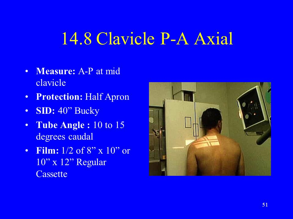 14.8 Clavicle P-A Axial Measure: A-P at mid clavicle