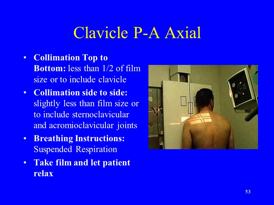 Clavicle P-A Axial Collimation Top to Bottom: less than 1/2 of film size or to include clavicle.