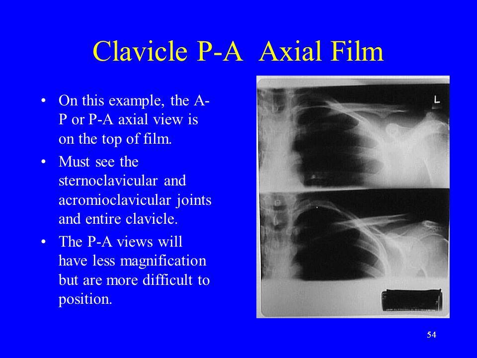 Clavicle P-A Axial Film