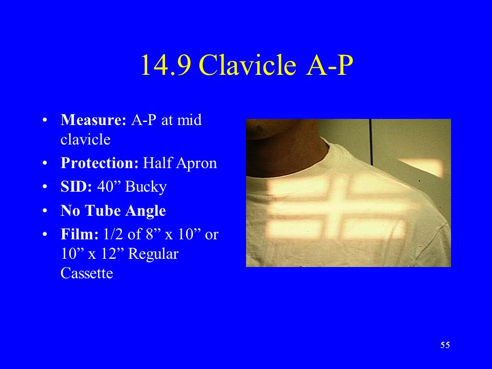 14.9 Clavicle A-P Measure: A-P at mid clavicle Protection: Half Apron