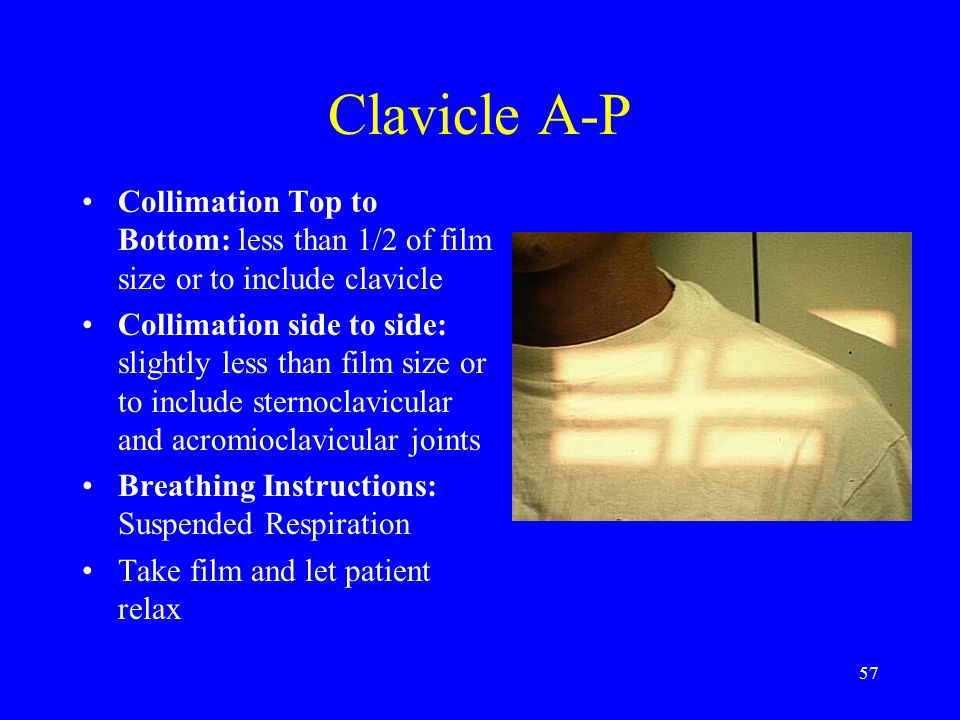 Clavicle A-P Collimation Top to Bottom: less than 1/2 of film size or to include clavicle.