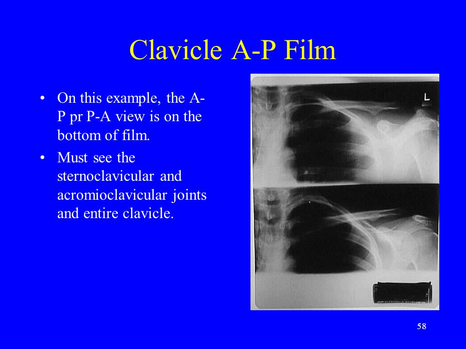 Clavicle A-P Film On this example, the A-P pr P-A view is on the bottom of film.