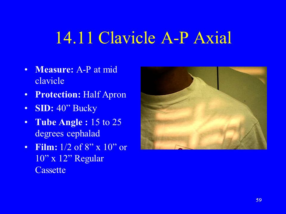 14.11 Clavicle A-P Axial Measure: A-P at mid clavicle