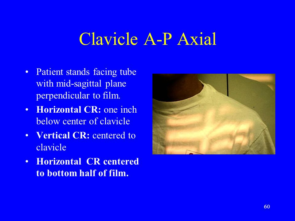 Clavicle A-P Axial Patient stands facing tube with mid-sagittal plane perpendicular to film. Horizontal CR: one inch below center of clavicle.