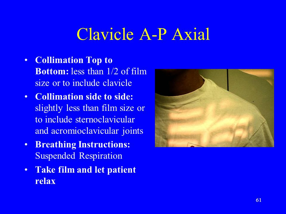 Clavicle A-P Axial Collimation Top to Bottom: less than 1/2 of film size or to include clavicle.