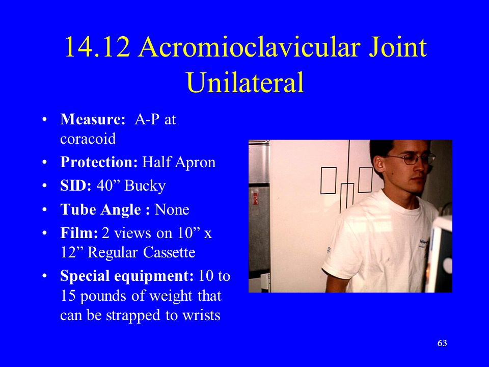 14.12 Acromioclavicular Joint Unilateral