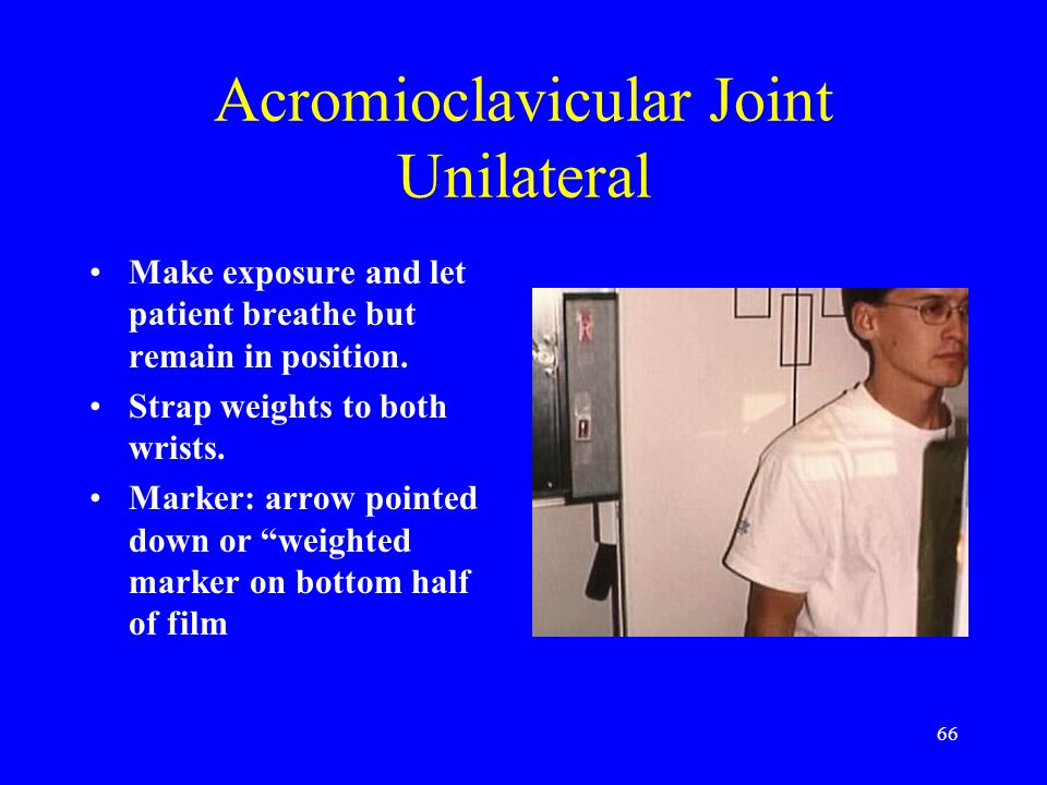 Acromioclavicular Joint Unilateral
