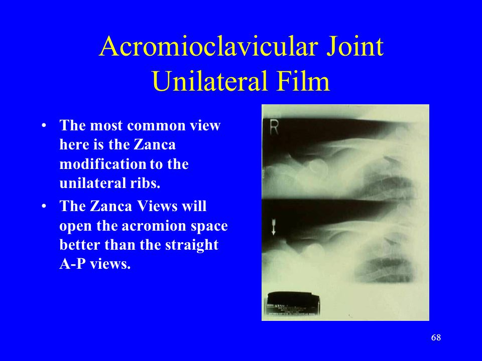 Acromioclavicular Joint Unilateral Film
