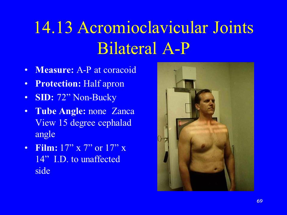 14.13 Acromioclavicular Joints Bilateral A-P