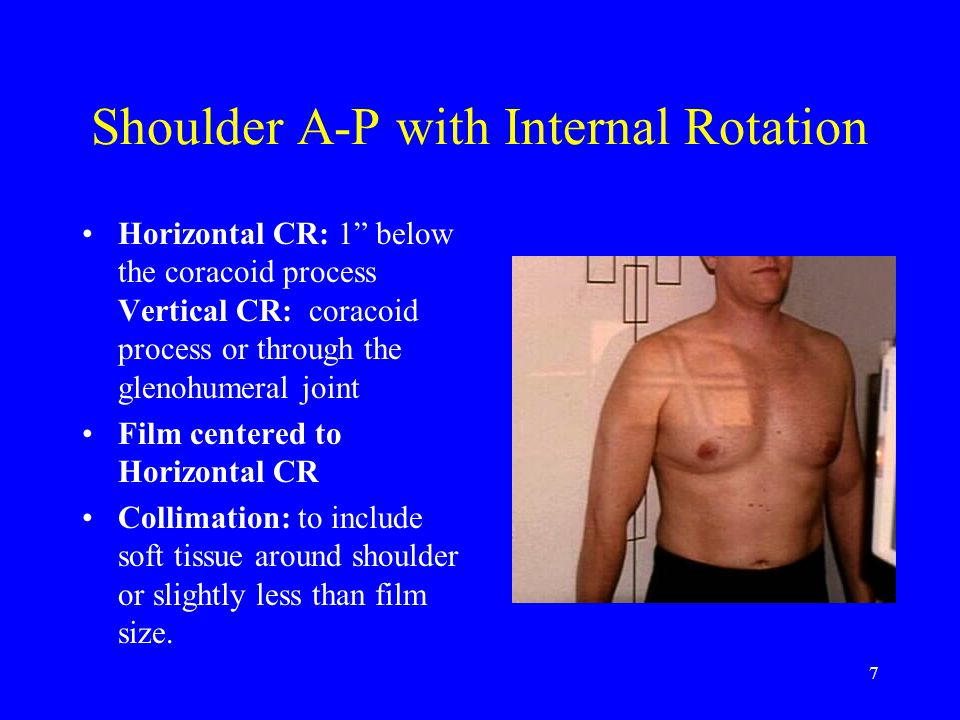 Shoulder A-P with Internal Rotation