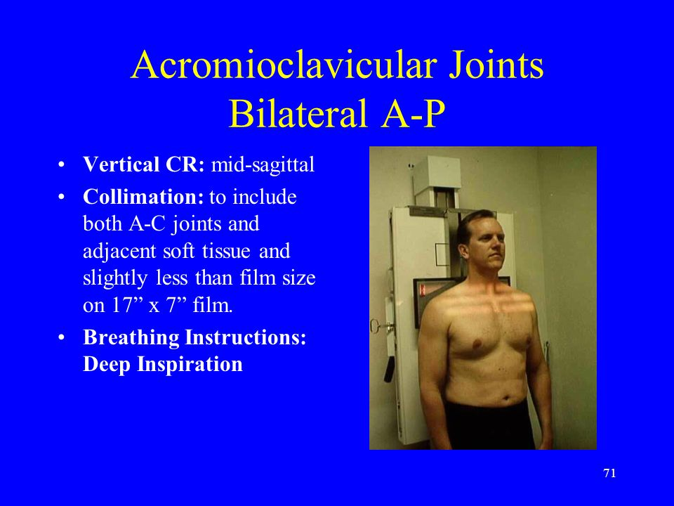 Acromioclavicular Joints Bilateral A-P
