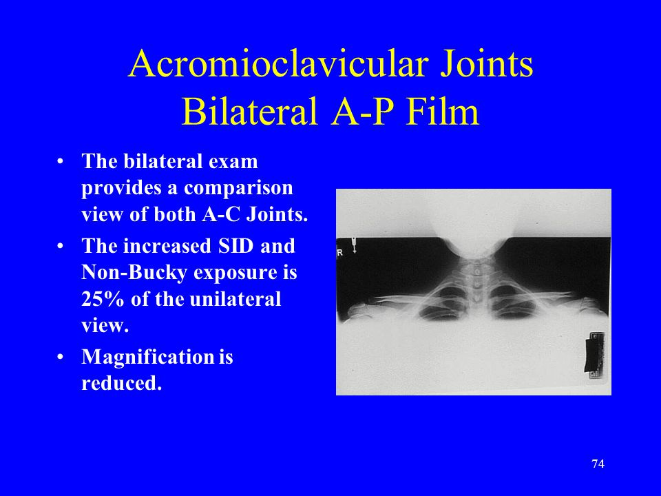 Acromioclavicular Joints Bilateral A-P Film