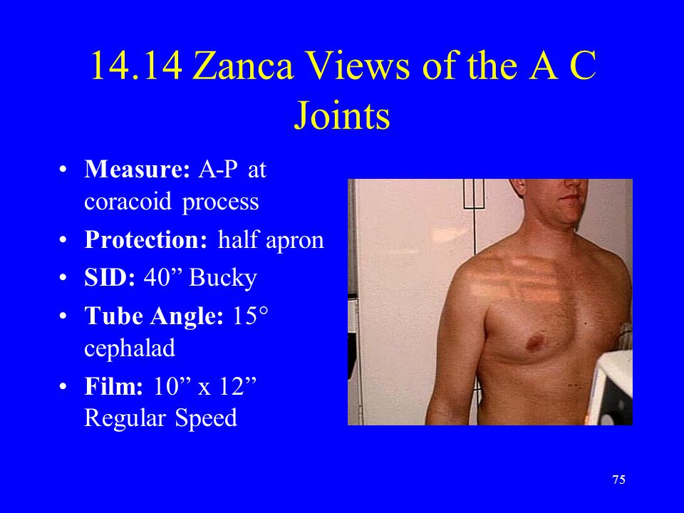 14.14 Zanca Views of the A C Joints