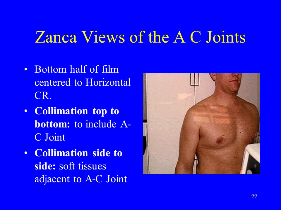 Zanca Views of the A C Joints