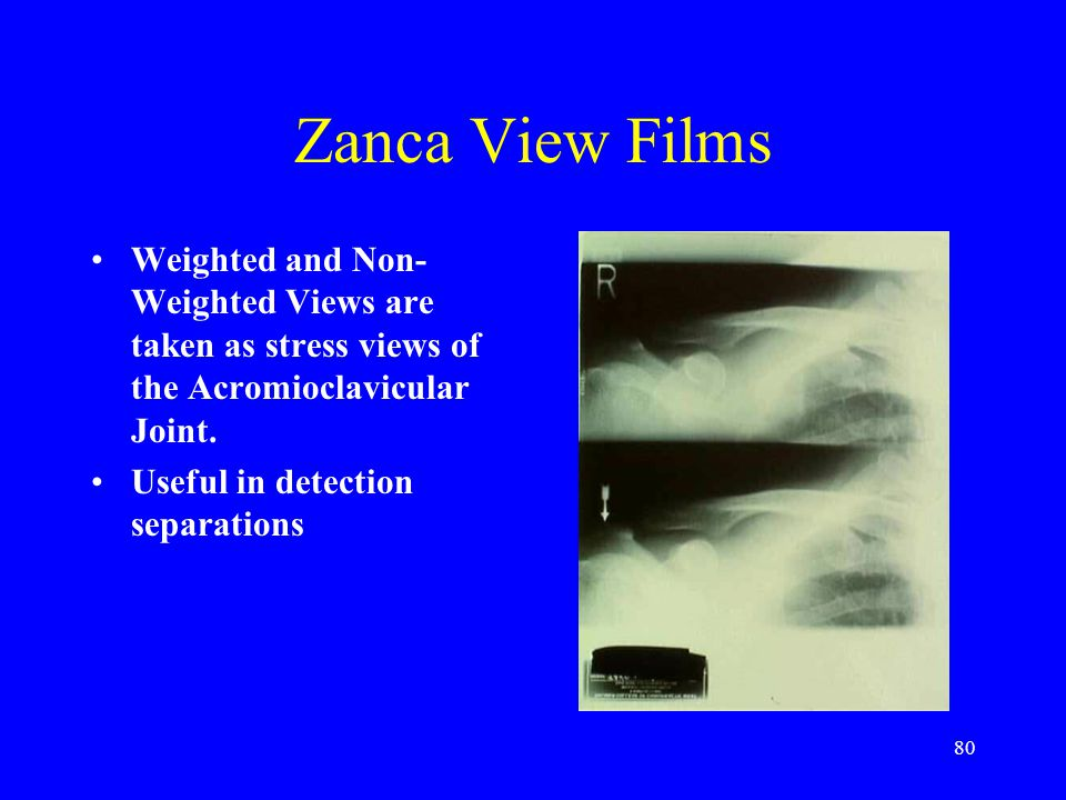 Zanca View Films Weighted and Non-Weighted Views are taken as stress views of the Acromioclavicular Joint.