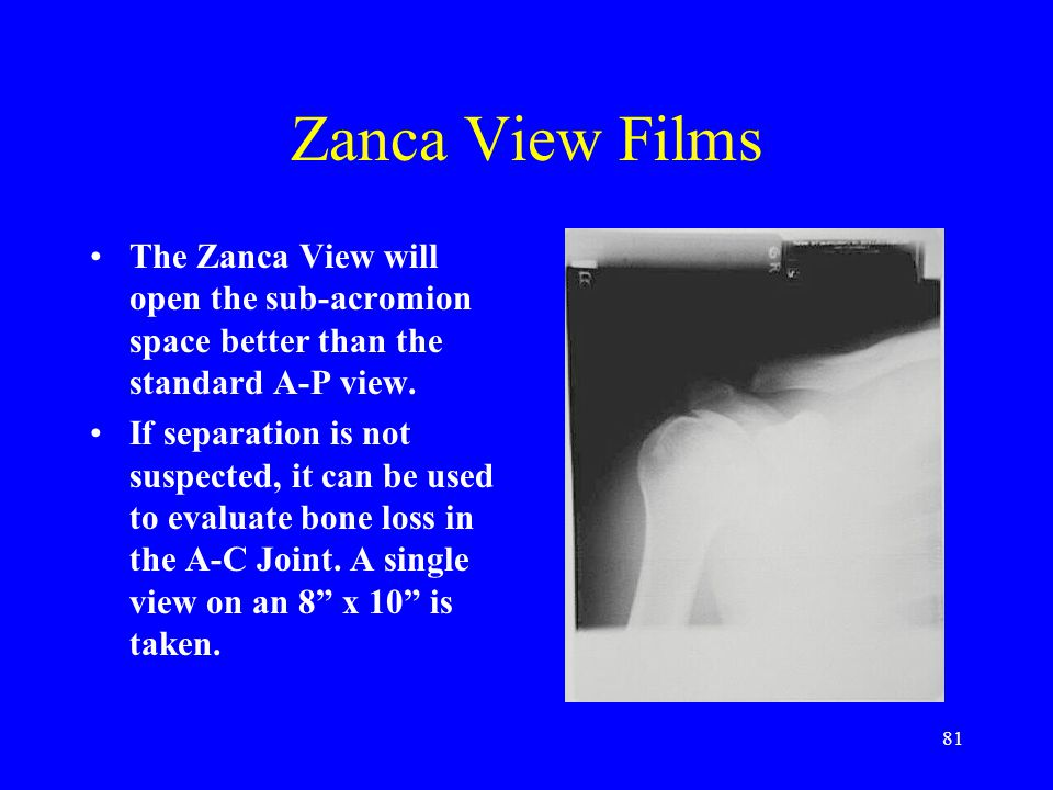 Zanca View Films The Zanca View will open the sub-acromion space better than the standard A-P view.