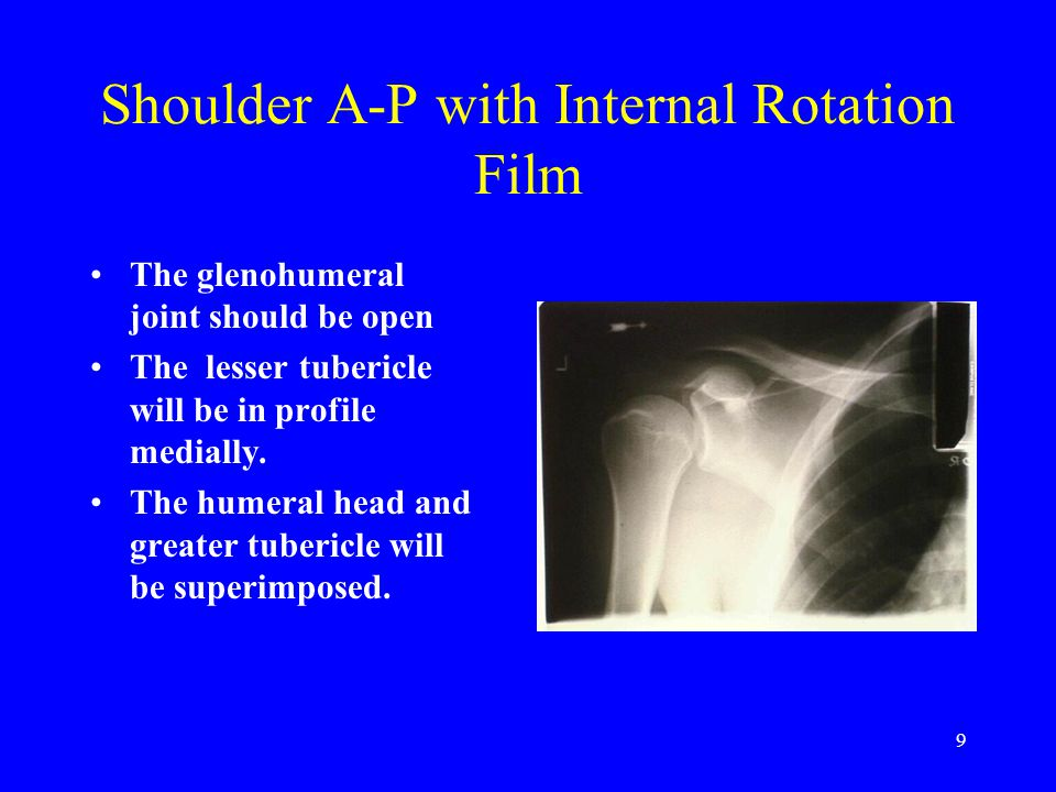 Shoulder A-P with Internal Rotation Film