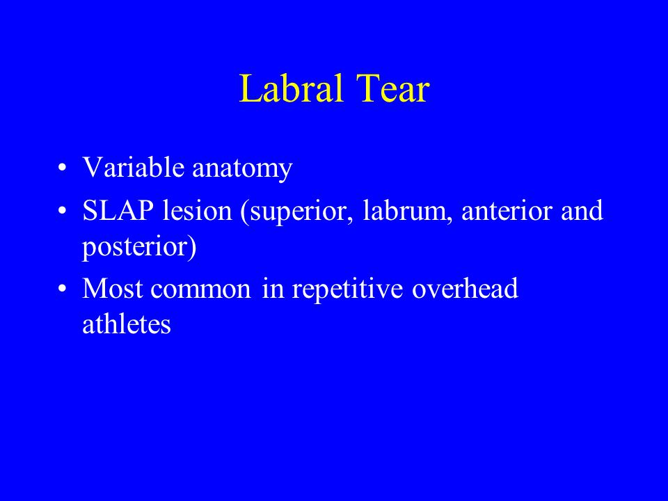 Labral Tear Variable anatomy
