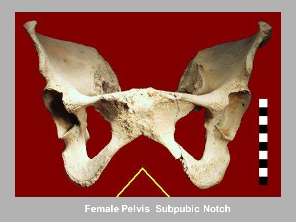 Female Pelvis Subpubic Notch
