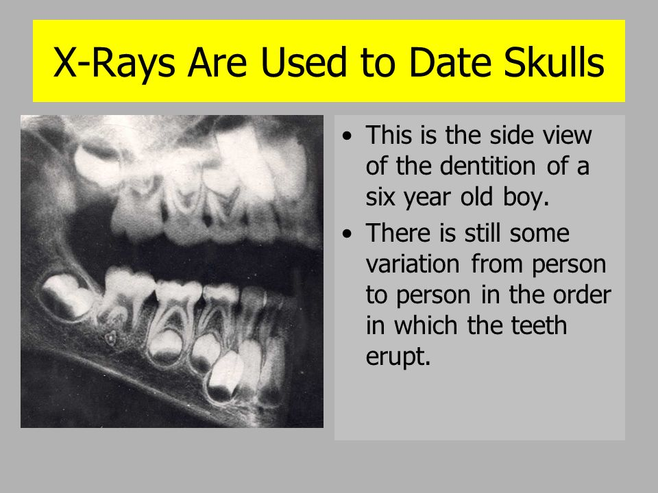 X-Rays Are Used to Date Skulls
