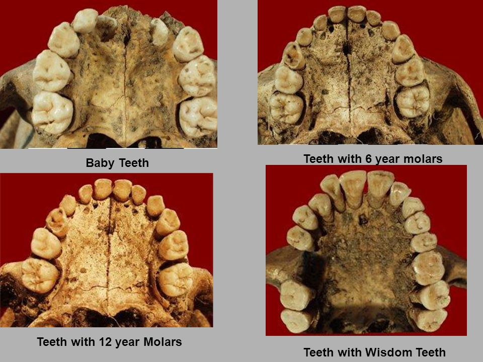 Teeth with 6 year molars Baby Teeth Teeth with 12 year Molars Teeth with Wisdom Teeth