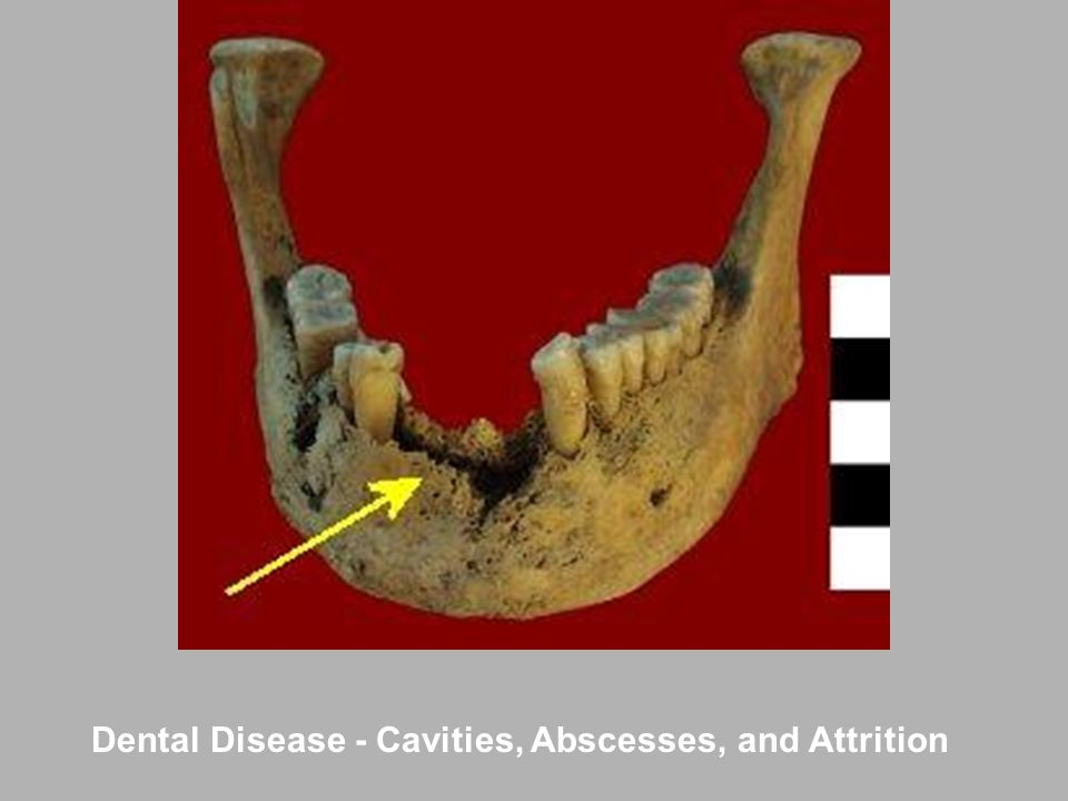 Dental Disease - Cavities, Abscesses, and Attrition