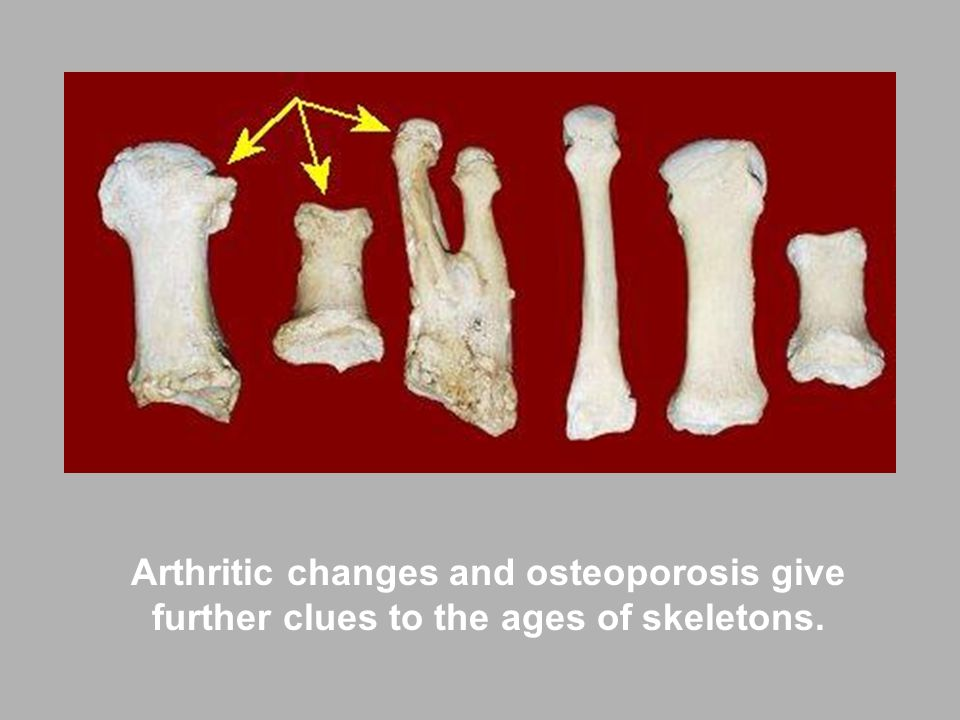 Arthritic changes and osteoporosis give further clues to the ages of skeletons.