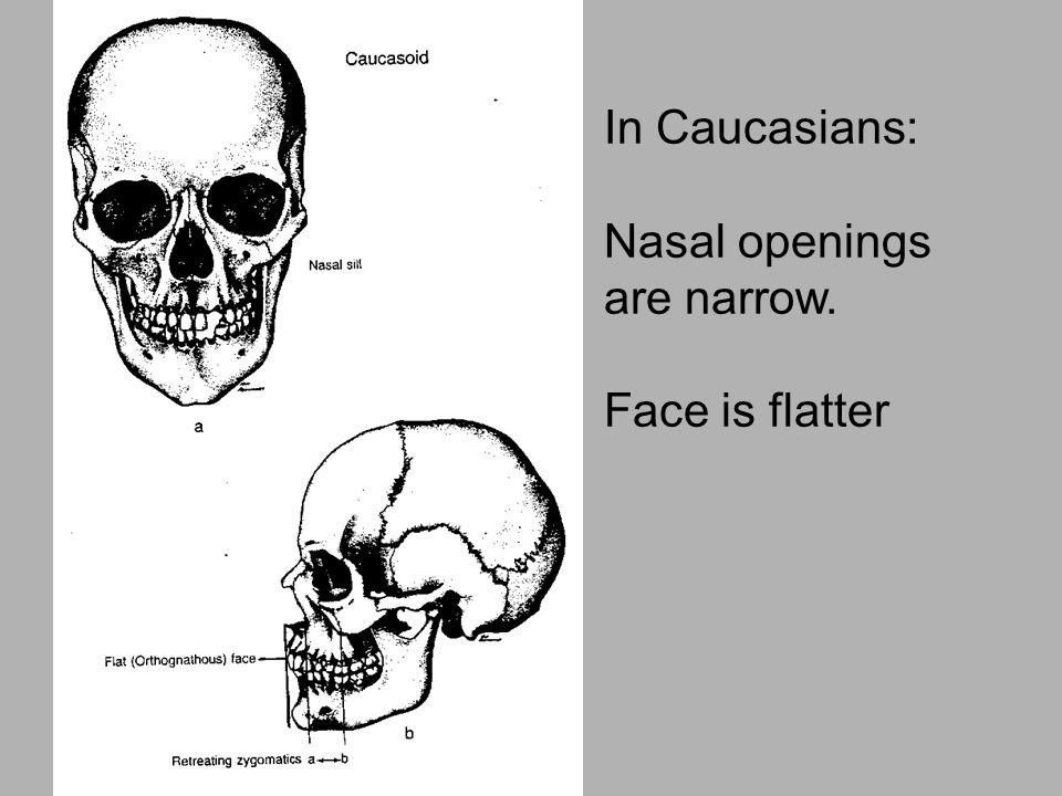 In Caucasians: Nasal openings are narrow. Face is flatter