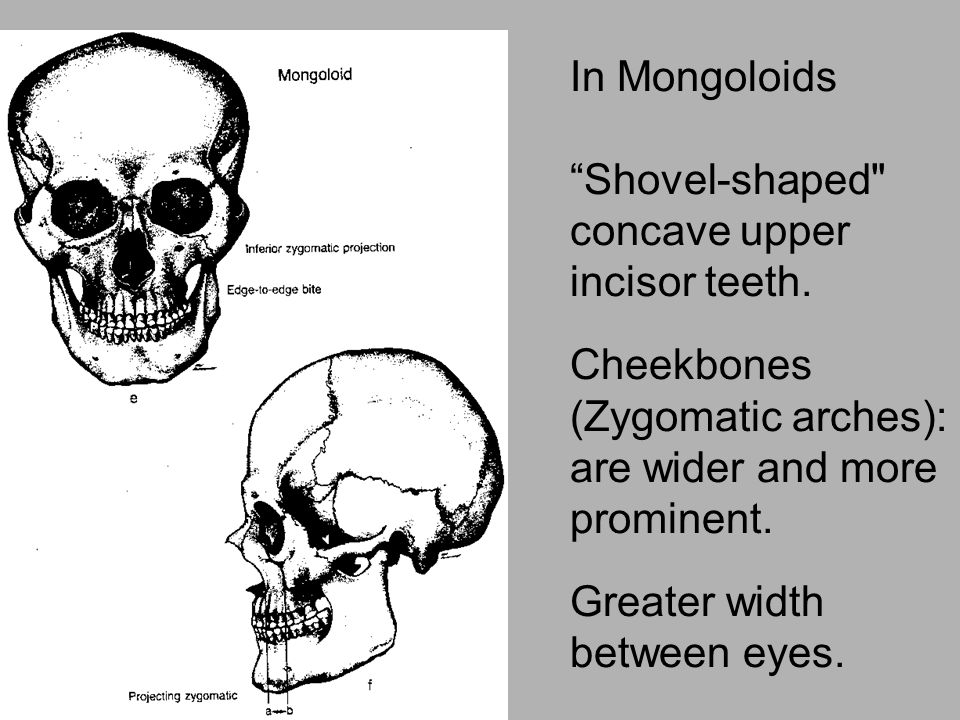 In Mongoloids Shovel-shaped concave upper incisor teeth. Cheekbones (Zygomatic arches): are wider and more prominent.