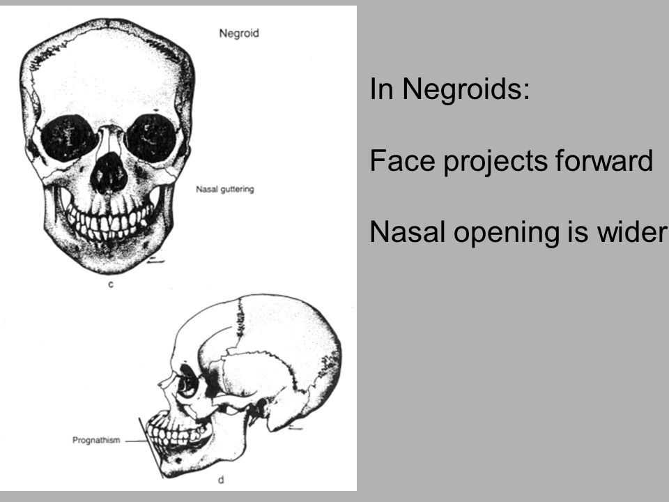 In Negroids: Face projects forward Nasal opening is wider