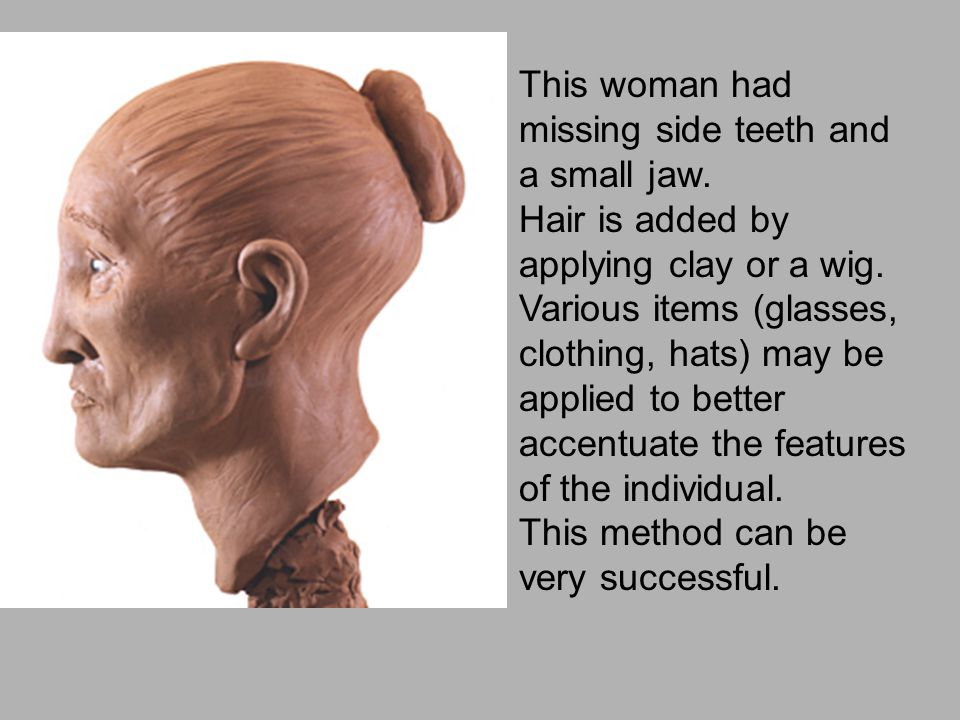 This woman had missing side teeth and a small jaw.