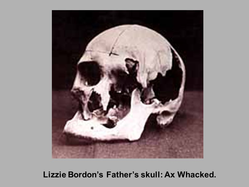 Lizzie Bordon's Father's skull: Ax Whacked.