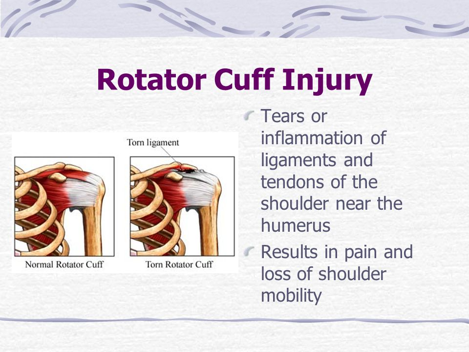 Rotator Cuff Injury Tears or inflammation of ligaments and tendons of the shoulder near the humerus.
