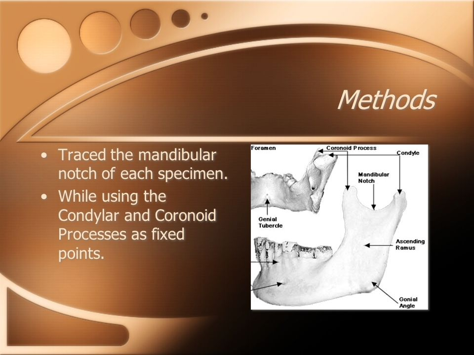 Methods Traced the mandibular notch of each specimen.