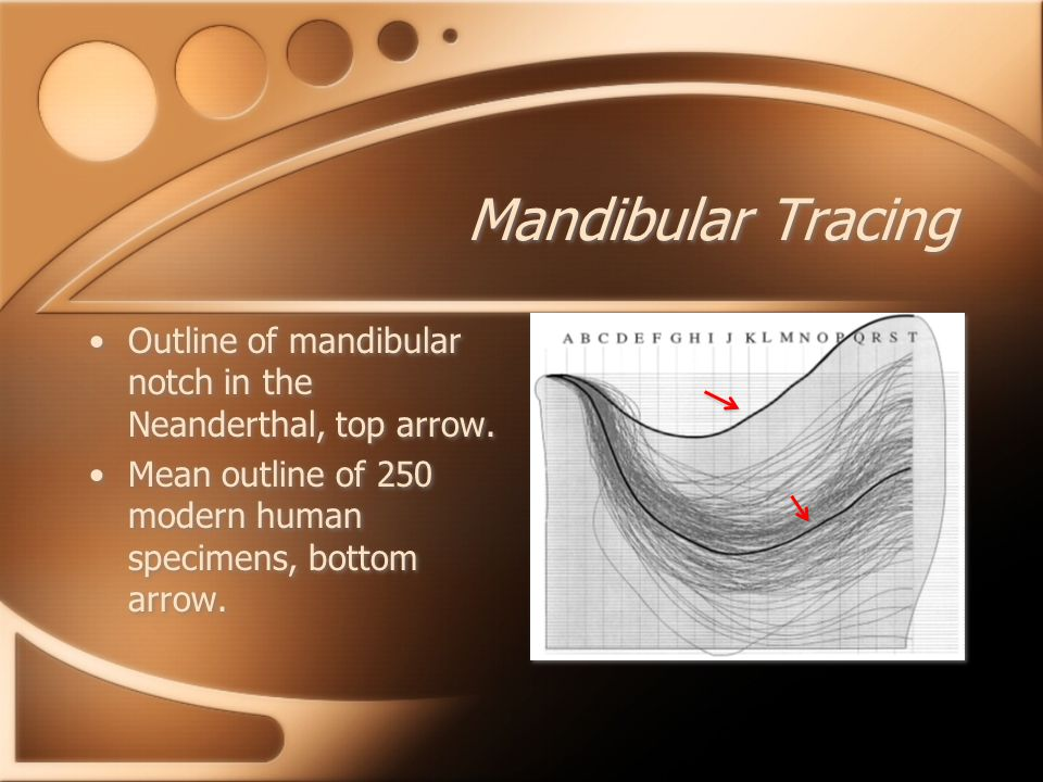 Mandibular Tracing Outline of mandibular notch in the Neanderthal, top arrow.