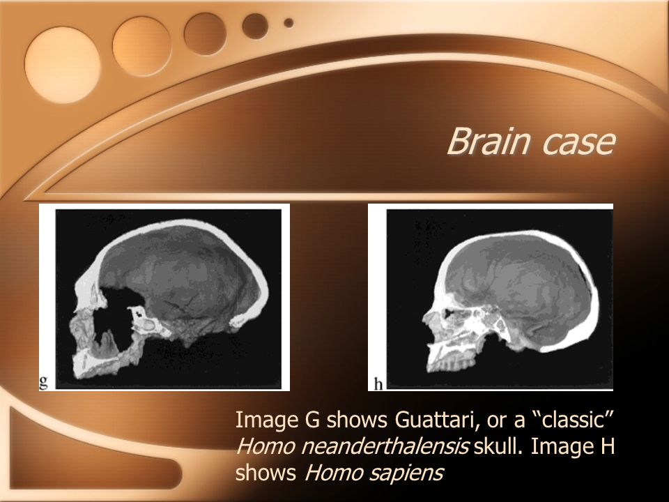 Brain case Image G shows Guattari, or a classic Homo neanderthalensis skull.