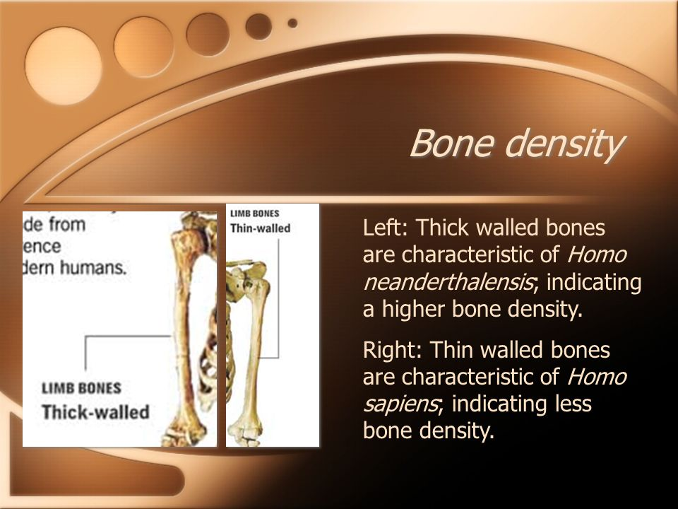 Bone density Left: Thick walled bones are characteristic of Homo neanderthalensis; indicating a higher bone density.